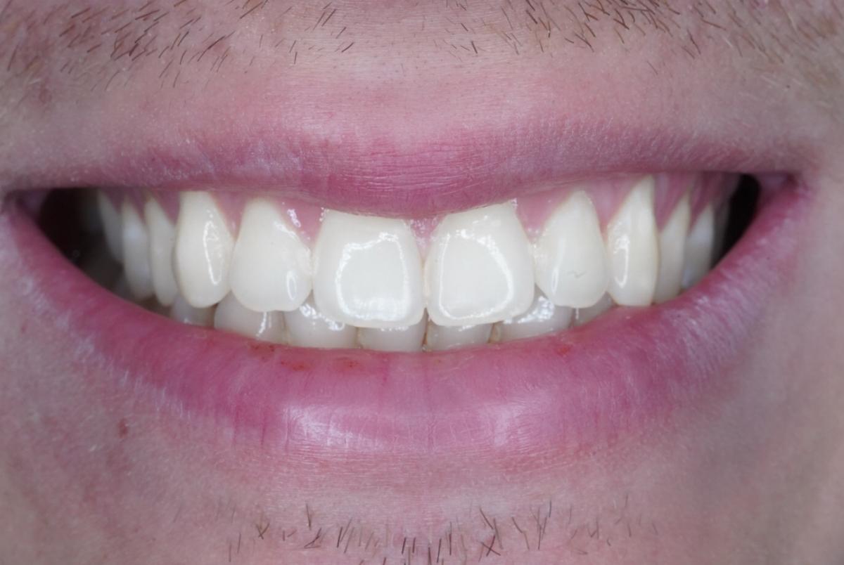 нужен активный фотоотбеливание зубов екатеринбург для