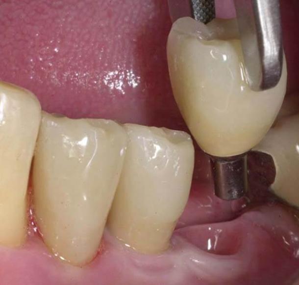 Удаление имплантов. Стоматология Максима Шубных