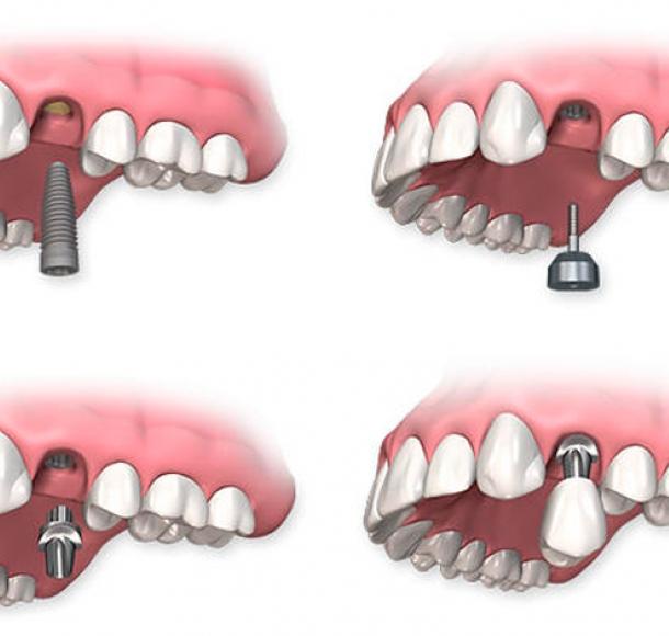 Двухэтапная установка имплантатов. Стоматология Максима Шубных