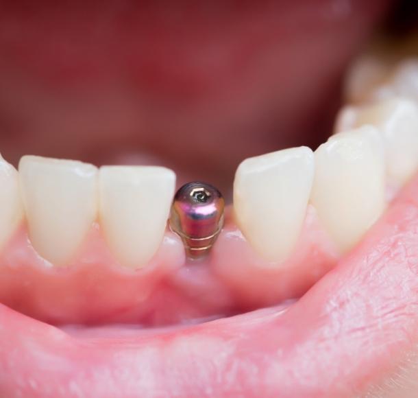 Нижние зубы. Стоматология Максима Шубных