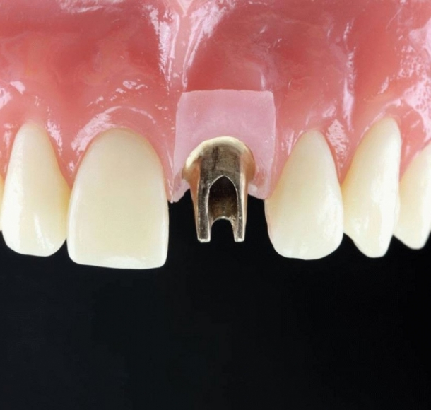 Верхние зубы. Стоматология Максима Шубных
