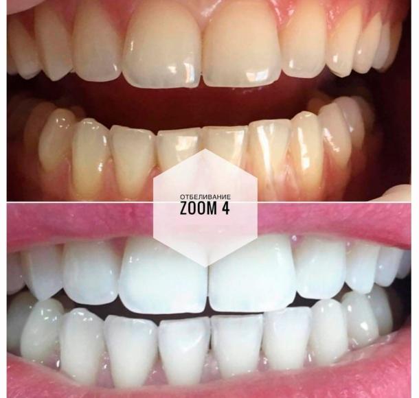 Отбеливание зубов Zoom 4. Стоматология Максима Шубных