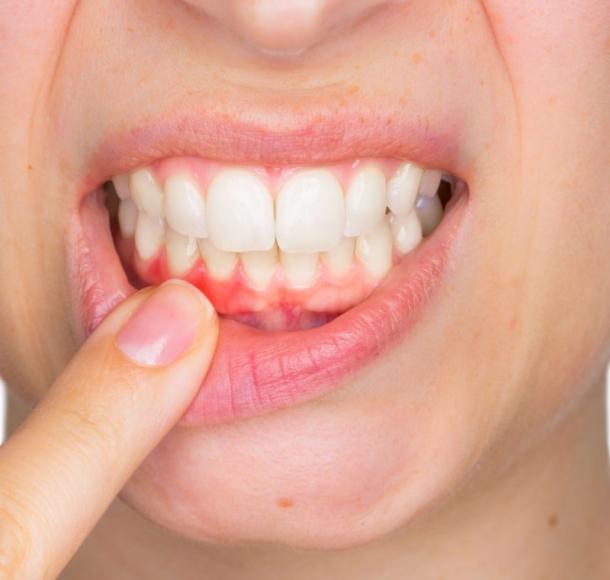 Лечение воспаления десен. Стоматология Максима Шубных