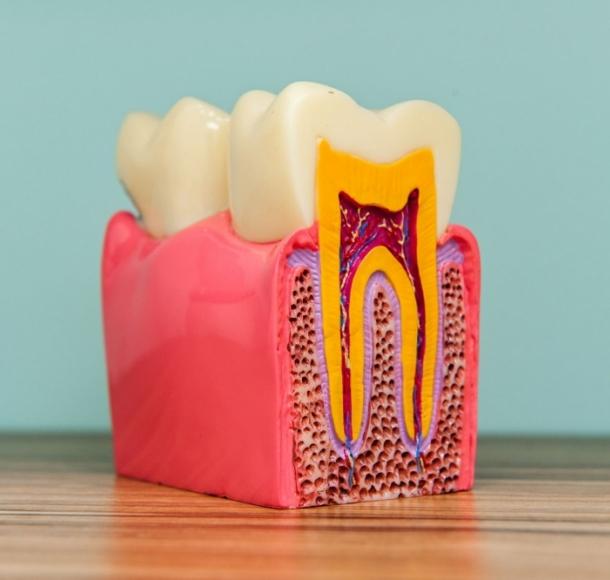 Зубосохраняющие операции. Стоматология Максима Шубных