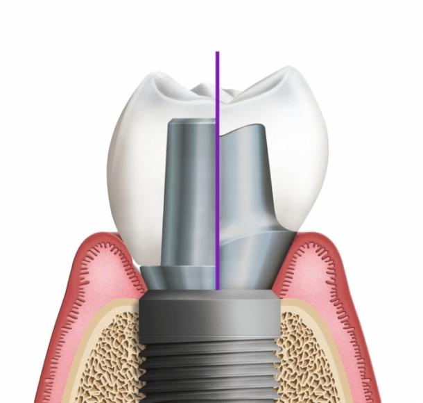 Имплантация зубов за 1 день. Стоматология Максима Шубных