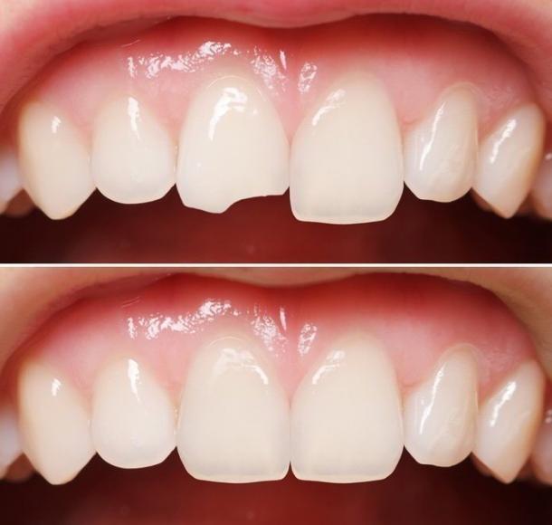 Восстановление и реставрация зубов. Стоматология Максима Шубных