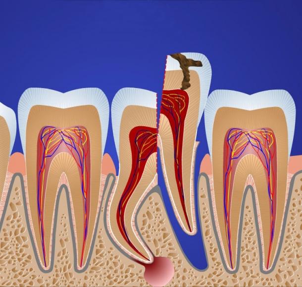 Удаление корня зуба. Стоматология Максима Шубных
