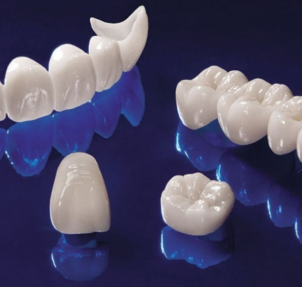 Безметалловая керамика. Стоматология Максима Шубных
