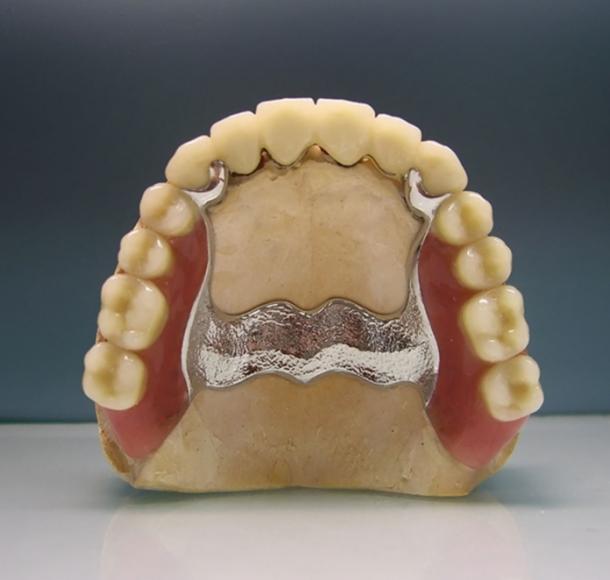 Бюгельный протез на верхнюю челюсть. Стоматология Максима Шубных