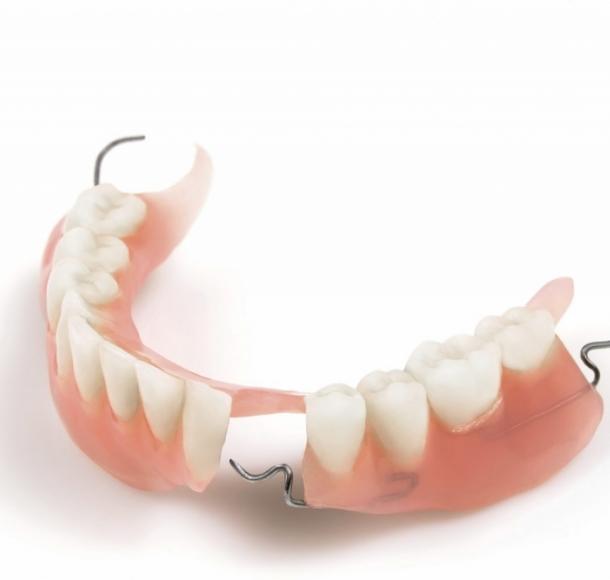 Частичные протезы зубов. Стоматология Максима Шубных