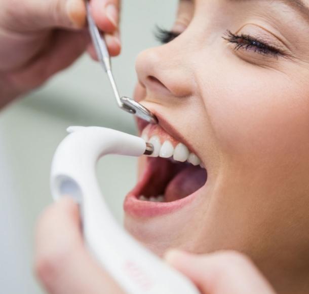 Профессиональная гигиена полости рта – чистка зубов Air Flow. Стоматология Максима Шубных