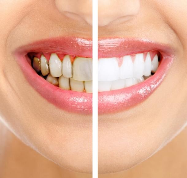 Чистка зубов и удаление зубного камня. Стоматология Максима Шубных