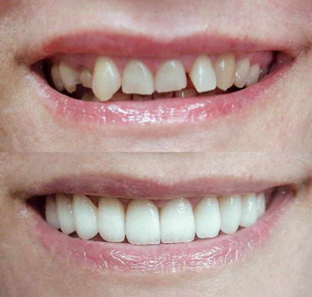 Эстетическая реставрация зубов. Стоматология Максима Шубных