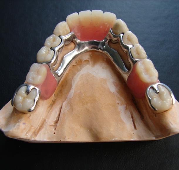 Бюгельный протез на нижнюю челюсть. Стоматология Максима Шубных