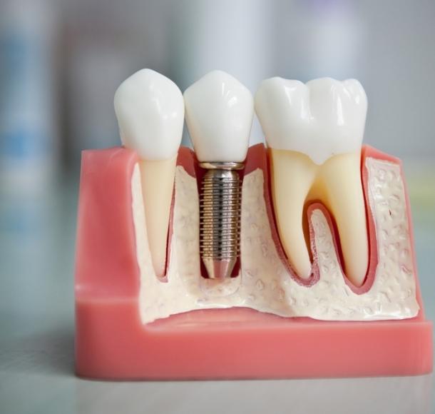 Имплантация зубов. Стоматология Максима Шубных