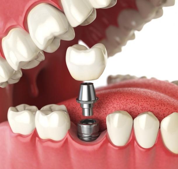 Имплантация одного зуба. Стоматология Максима Шубных