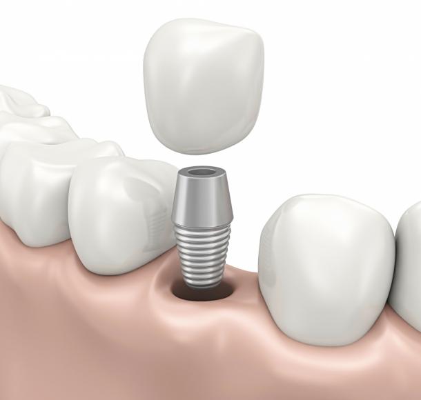 Одномоментная имплантация зубов. Стоматология Максима Шубных