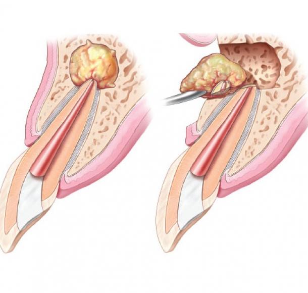 Лечение кисты зуба. Стоматология Максима Шубных
