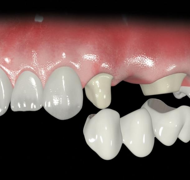Мостовидные протезы зубов. Стоматология Максима Шубных