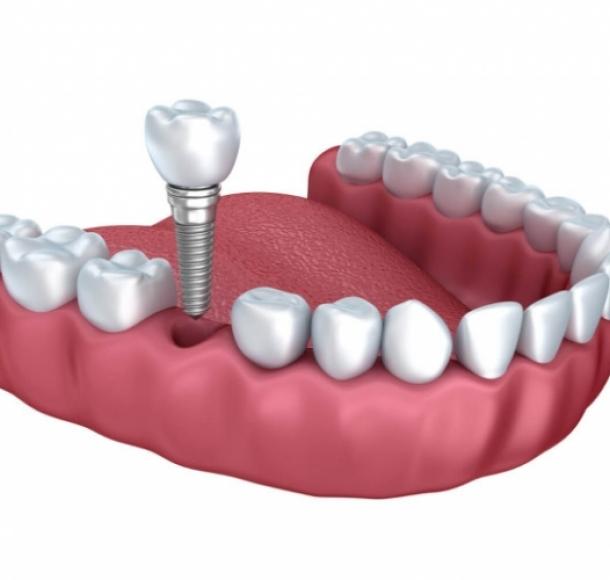 Имплантация передних нижних зубов. Стоматология Максима Шубных
