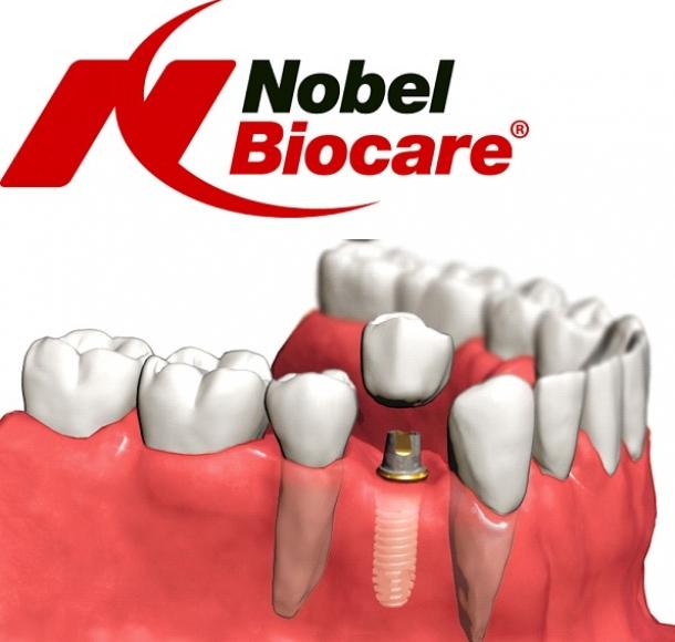 Импланты Nobel. Стоматология Максима Шубных