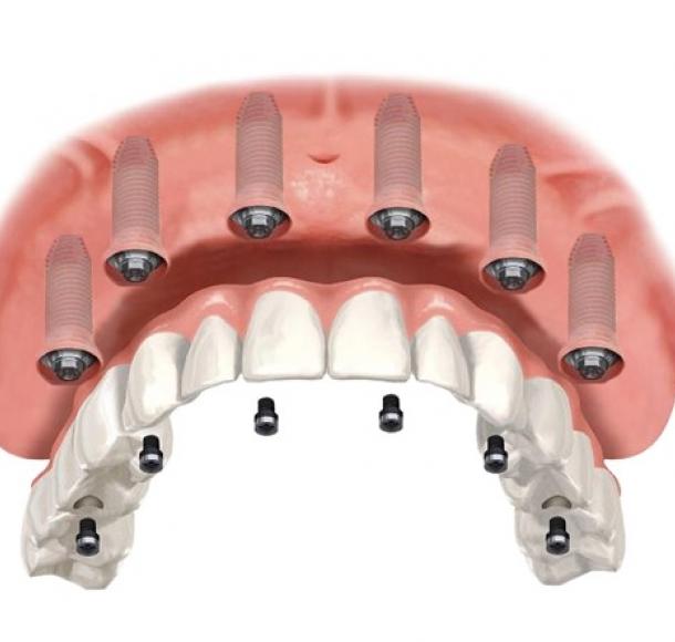Имплантация All-on-6. Стоматология Максима Шубных