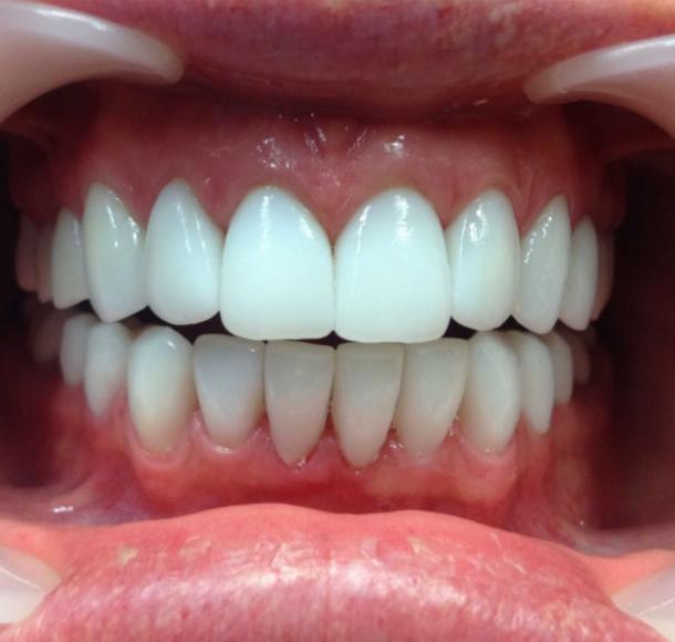 Протезирование передних зубов. Стоматология Максима Шубных