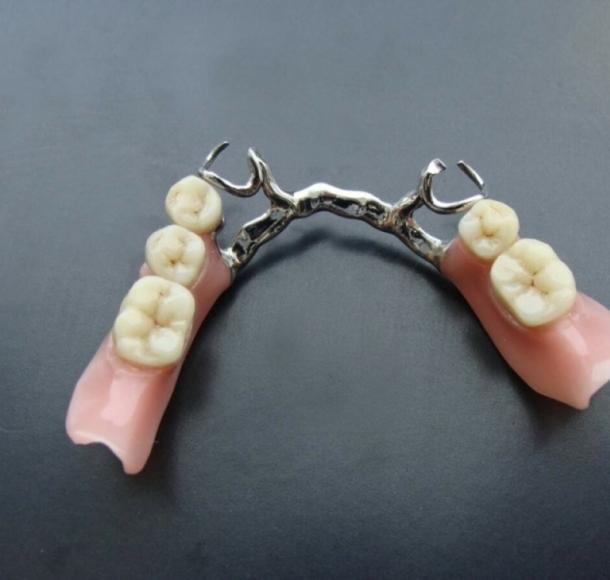 Зубные протезы на нижнюю челюсть. Стоматология Максима Шубных