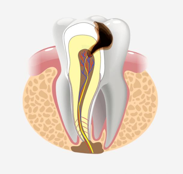 Лечение пульпита. Стоматология Максима Шубных