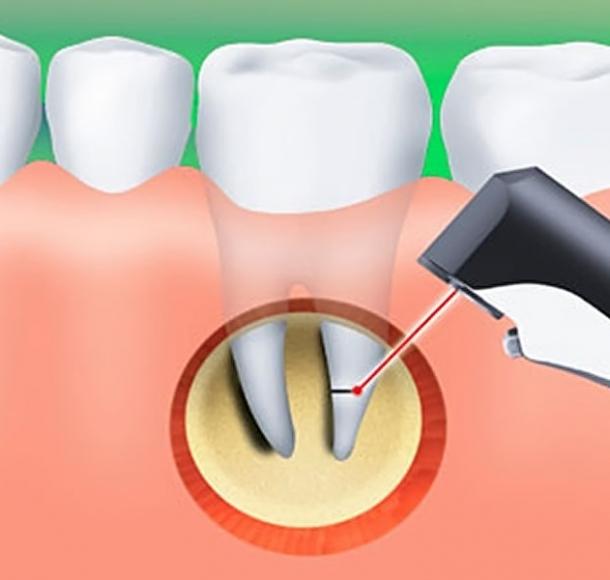 Резекция верхушки корня зуба. Стоматология Максима Шубных