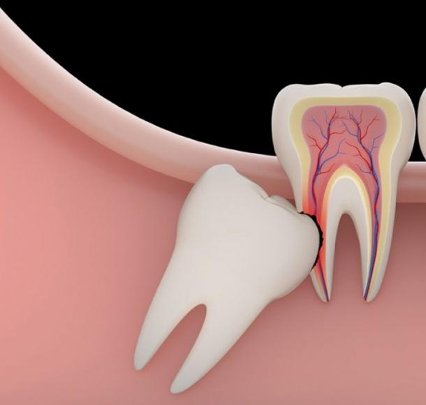 Удаление ретинированного зуба. Стоматология Максима Шубных