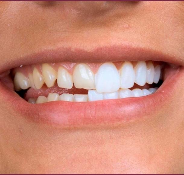 Виниры для зубов. Стоматология Максима Шубных