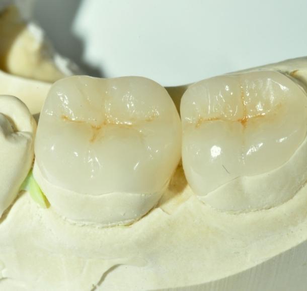 Зубные вкладки. Стоматология Максима Шубных