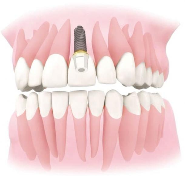 Имплантация передних верхних зубов. Стоматология Максима Шубных